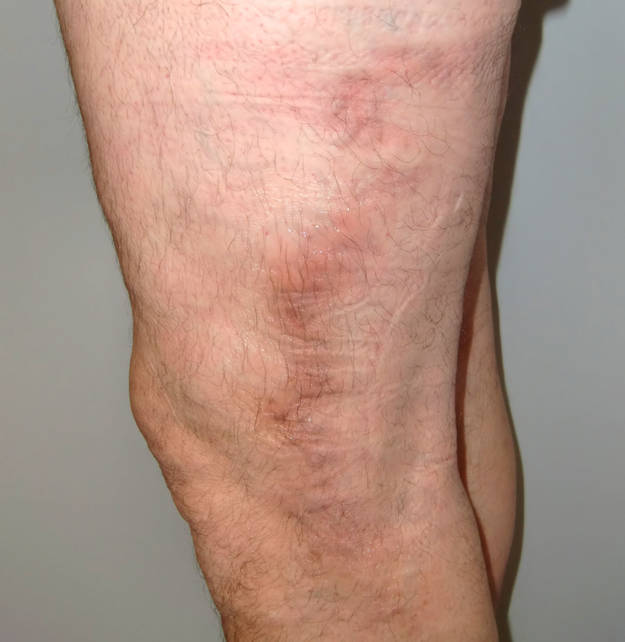 Venenentzündung: Phlebologie - Angiologie - Lymphologie